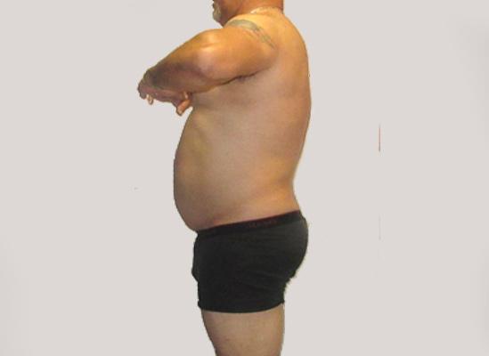 bellybefore